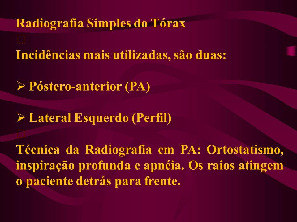 Radiografia Simples do Tórax ‡ Incidências mais utilizadas, são duas: Póstero-anterior (PA) Lateral Esquerdo (Perfil) ‡ Técnica da Radiografia em PA: