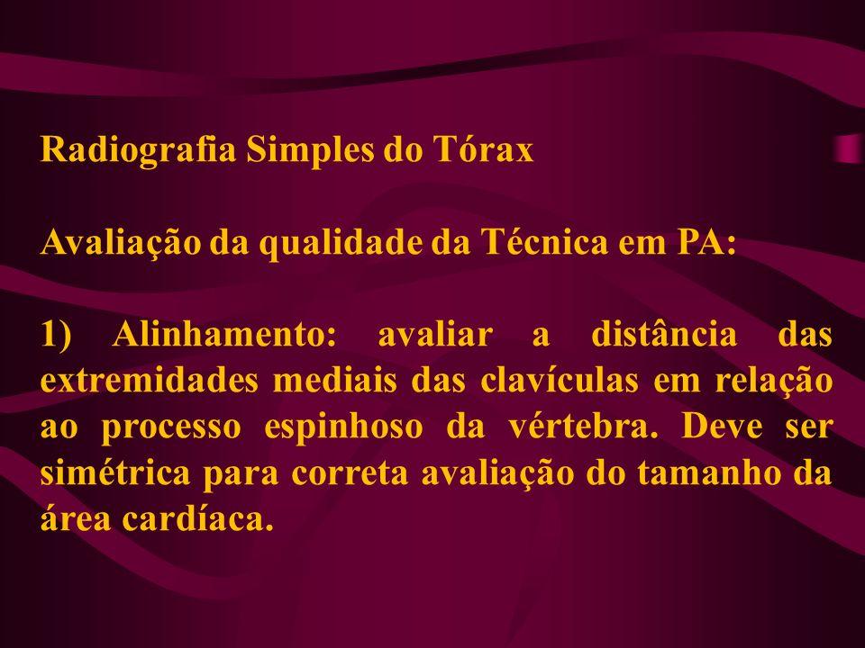 Radiografia Simples do Tórax Avaliação da qualidade da Técnica em PA: 1) Alinhamento: avaliar a distância das extremidades mediais das clavículas em r