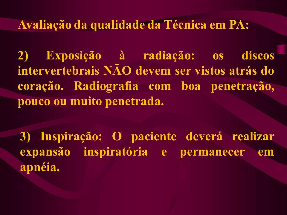 Avaliação da qualidade da Técnica em PA: 2) Exposição à radiação: os discos intervertebrais NÃO devem ser vistos atrás do coração. Radiografia com boa