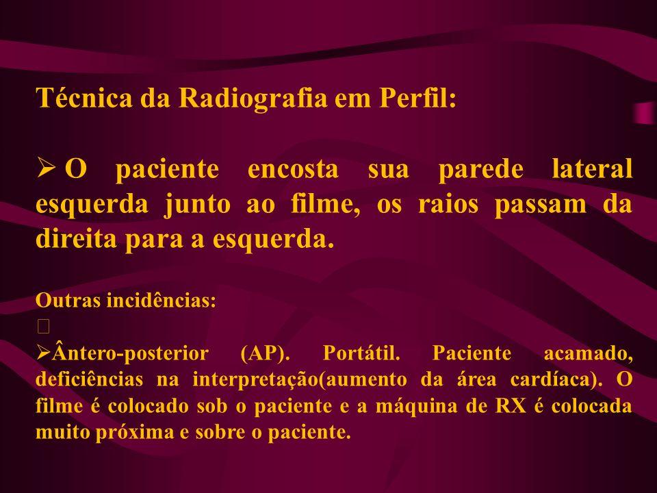 Técnica da Radiografia em Perfil: O paciente encosta sua parede lateral esquerda junto ao filme, os raios passam da direita para a esquerda. Outras in