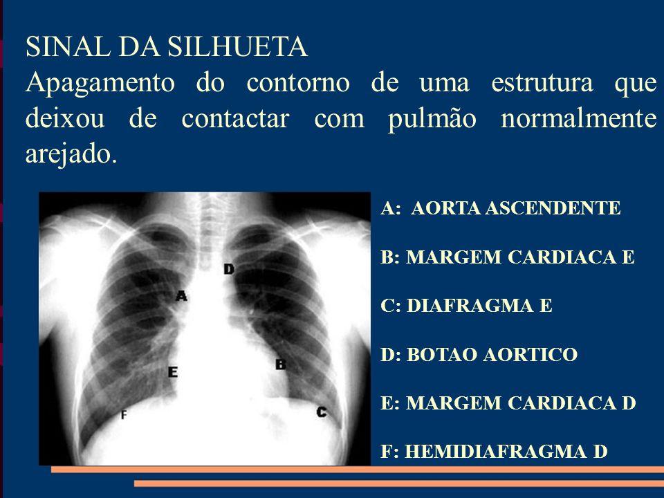 SINAL DA SILHUETA Apagamento do contorno de uma estrutura que deixou de contactar com pulmão normalmente arejado. A: AORTA ASCENDENTE B: MARGEM CARDIA