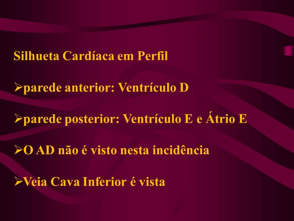 Silhueta Cardíaca em Perfil parede anterior: Ventrículo D parede posterior: Ventrículo E e Átrio E O AD não é visto nesta incidência Veia Cava Inferio