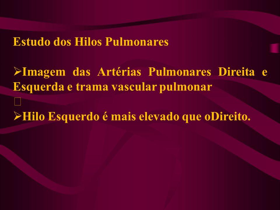Estudo dos Hilos Pulmonares Imagem das Artérias Pulmonares Direita e Esquerda e trama vascular pulmonar ‡ Hilo Esquerdo é mais elevado que oDireito.