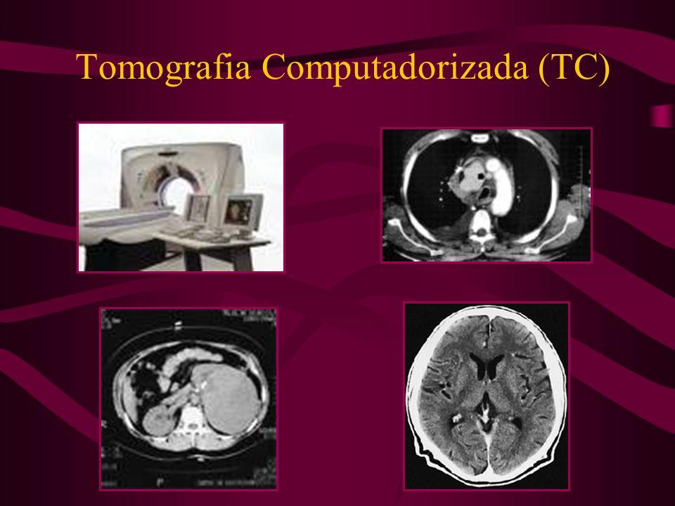 Tomografia Computadorizada (TC)