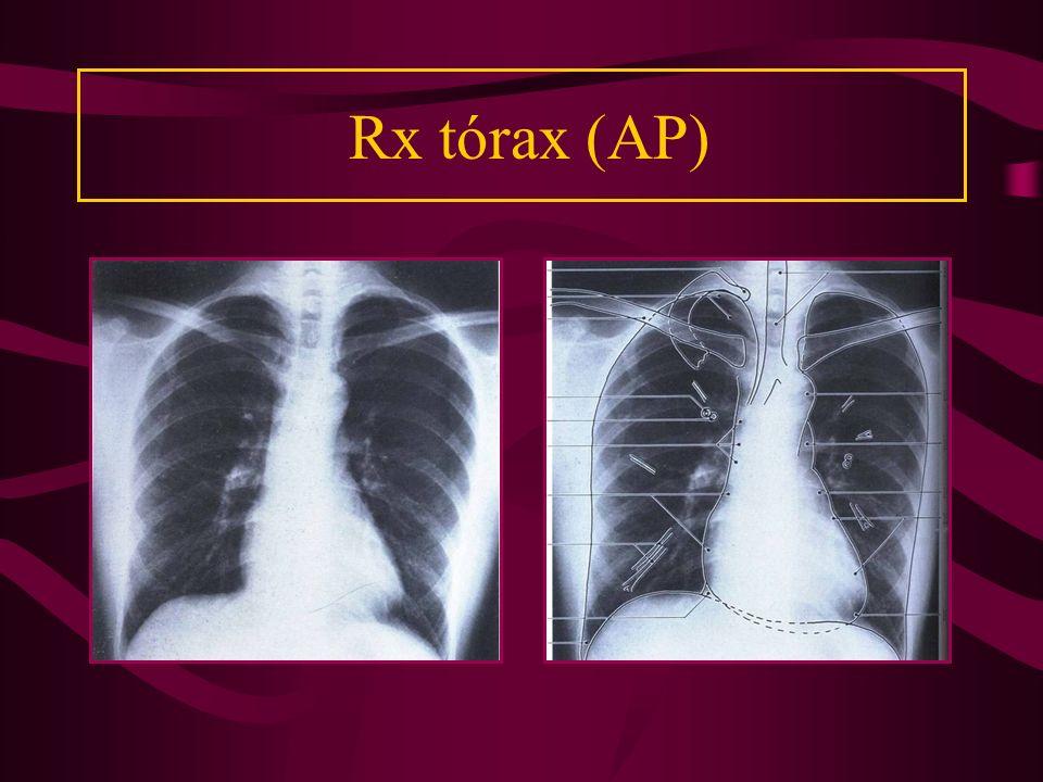 Rx tórax (AP)