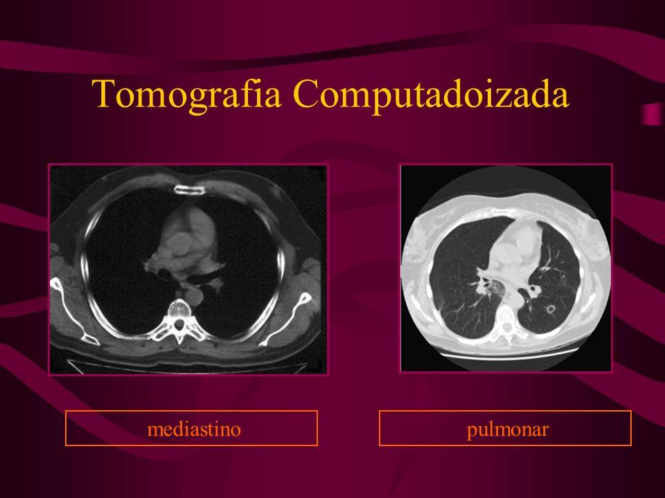 Tomografia Computadoizada mediastino pulmonar