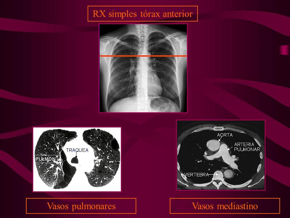 Vasos mediastinoVasos pulmonares RX simples tórax anterior