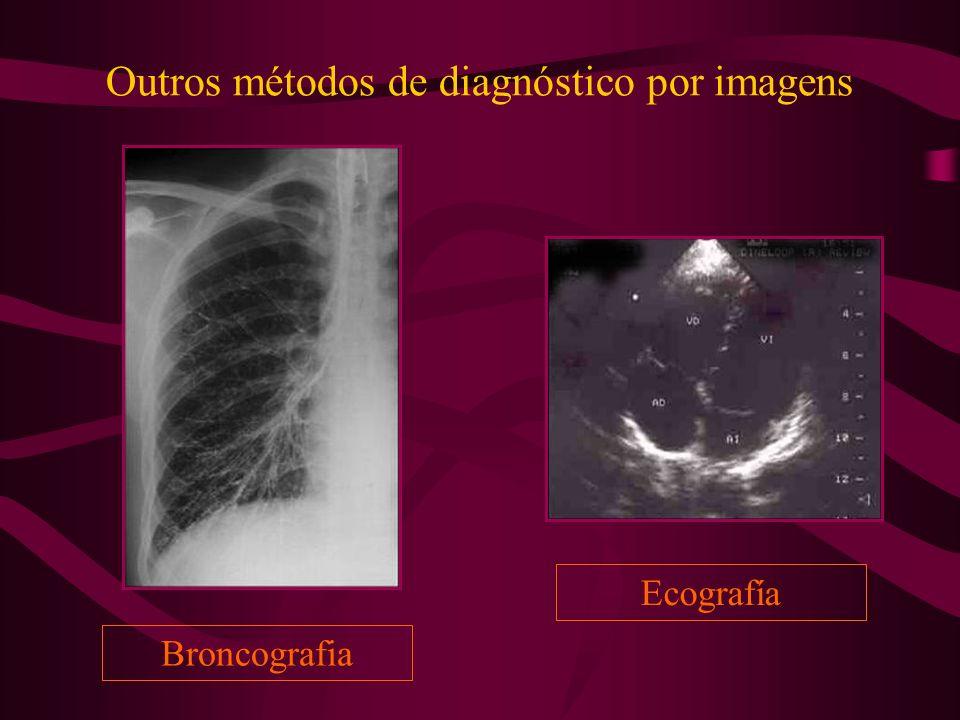 Outros métodos de diagnóstico por imagens Broncografia Ecografía
