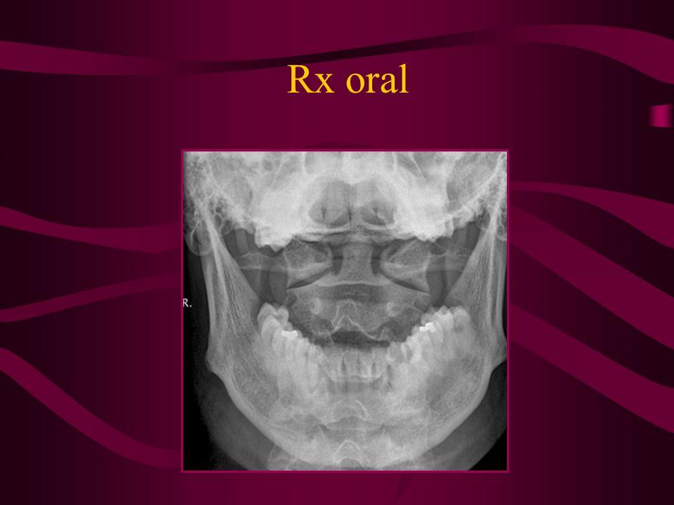 Rx oral