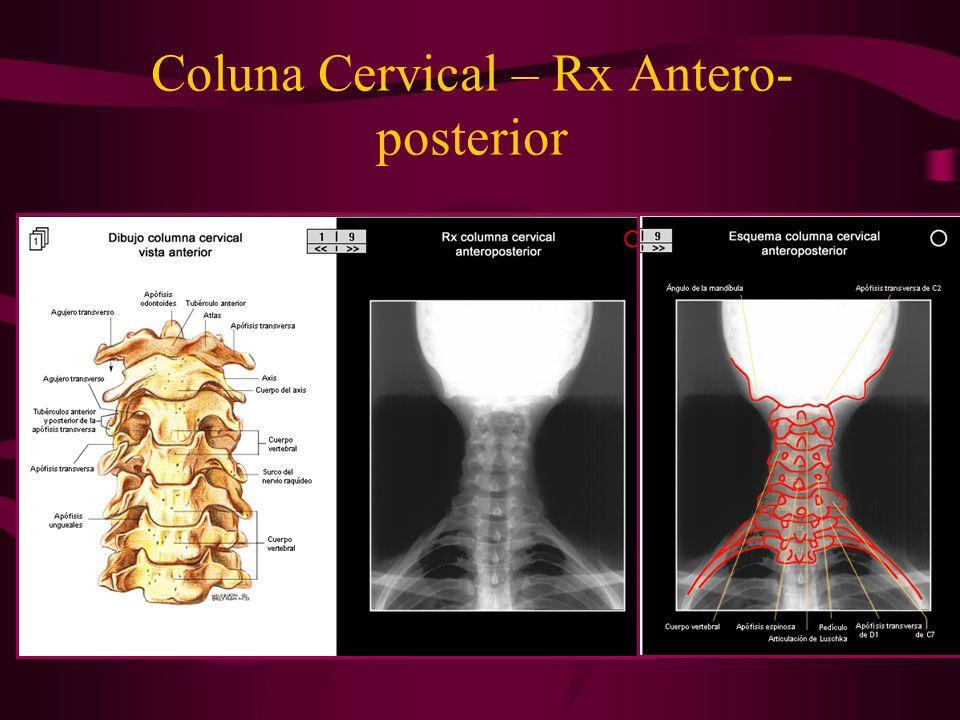 Coluna Cervical – Rx Antero- posterior