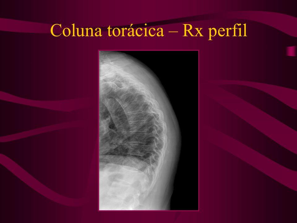Coluna torácica – Rx perfil