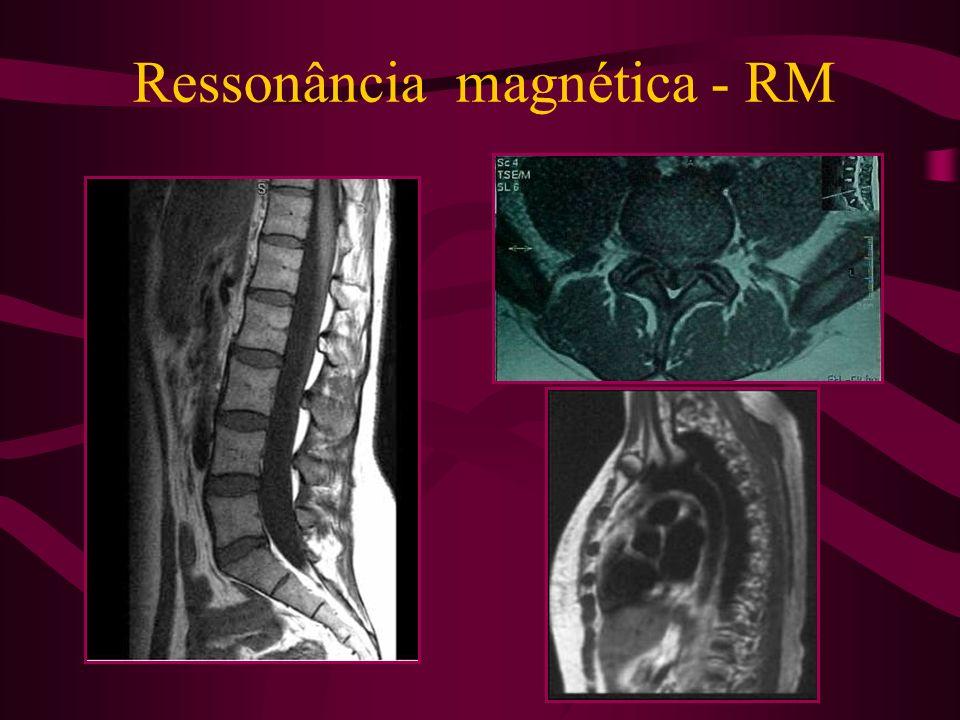 Ressonância magnética - RM