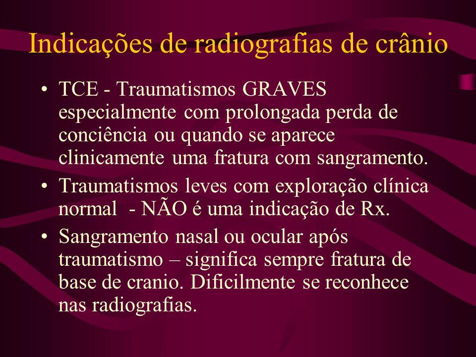 Indicações de radiografias de crânio TCE - Traumatismos GRAVES especialmente com prolongada perda de conciência ou quando se aparece clinicamente uma