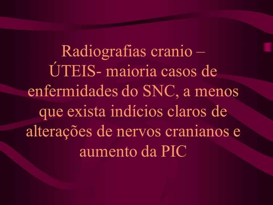 Radiografias cranio – ÚTEIS- maioria casos de enfermidades do SNC, a menos que exista indícios claros de alterações de nervos cranianos e aumento da P