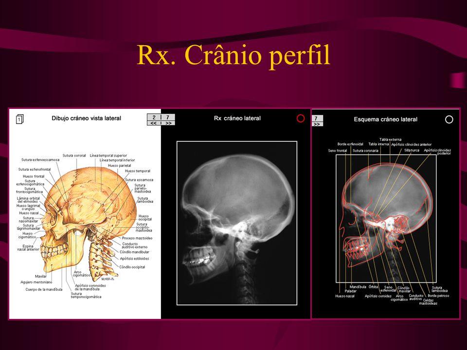 Rx. Crânio perfil