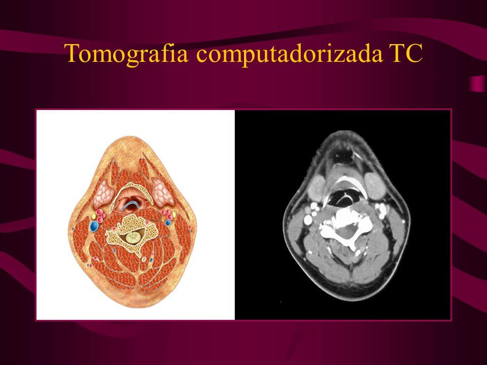 Tomografia computadorizada TC