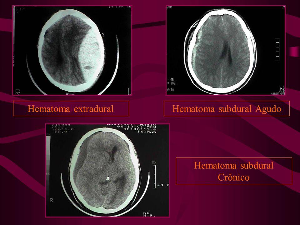 Hematoma extraduralHematoma subdural Agudo Hematoma subdural Crônico