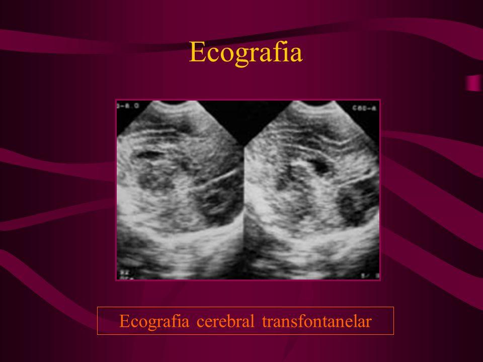 Ecografia Ecografia cerebral transfontanelar