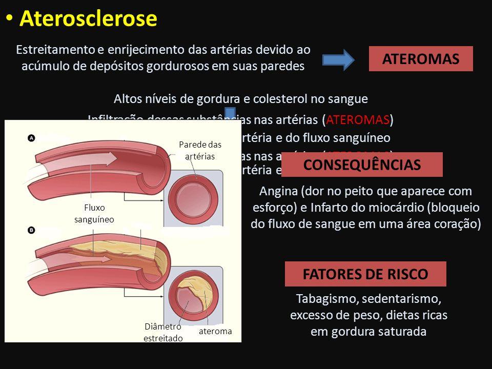 Vermes adultos Ovos nas fezes Ascaridíase Agente etiológico: Ascaris lumbricoides (nematelminto) Transmissão: água e alimentos contaminados com ovos do verme.