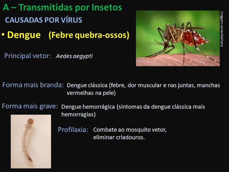 Febre Amarela Principal vetor: Aedes aegypti Sintomas: Febre, dor de cabeça e nas costas, náusea, vômitos, coloração amarelada da pele e mucosas (bilirrubina), insuficiência hepática e renal.