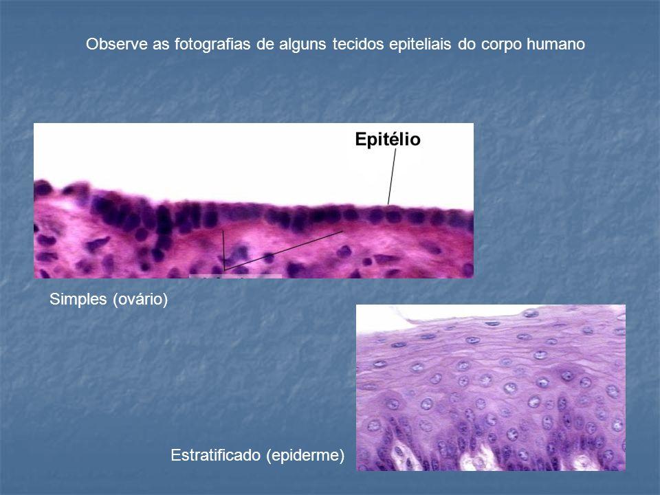 Simples (ovário) Estratificado (epiderme) Observe as fotografias de alguns tecidos epiteliais do corpo humano
