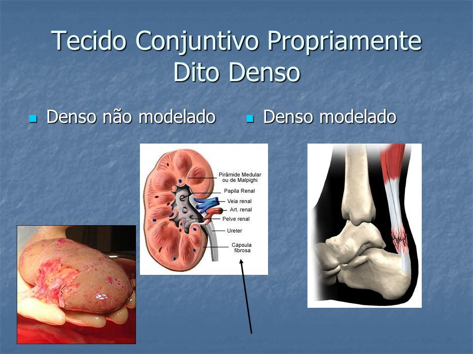 Tecido Conjuntivo Propriamente Dito Denso Denso não modelado Denso não modelado Denso modelado Denso modelado