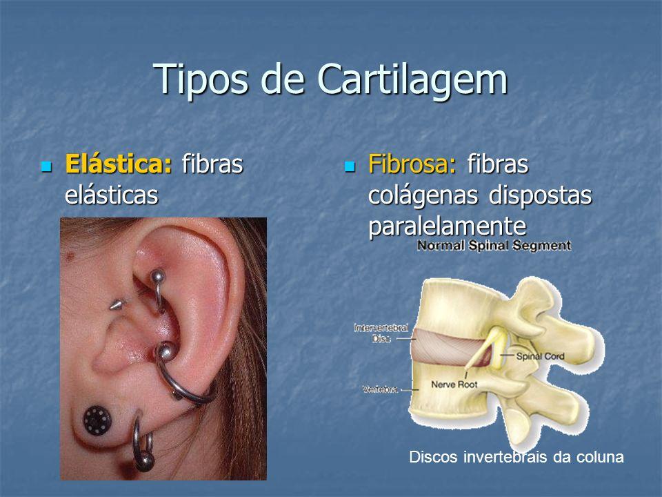 Tipos de Cartilagem Elástica: fibras elásticas Elástica: fibras elásticas Fibrosa: fibras colágenas dispostas paralelamente Fibrosa: fibras colágenas