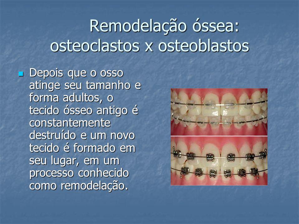 Remodelação óssea: osteoclastos x osteoblastos Depois que o osso atinge seu tamanho e forma adultos, o tecido ósseo antigo é constantemente destruído