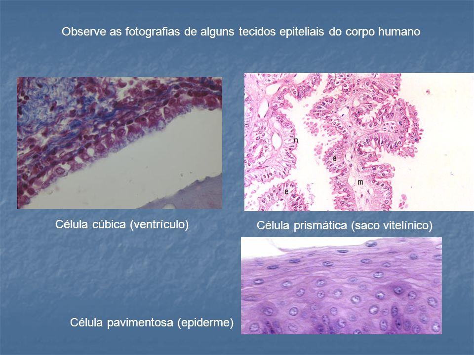 Célula cúbica (ventrículo) Célula prismática (saco vitelínico) Célula pavimentosa (epiderme) Observe as fotografias de alguns tecidos epiteliais do co
