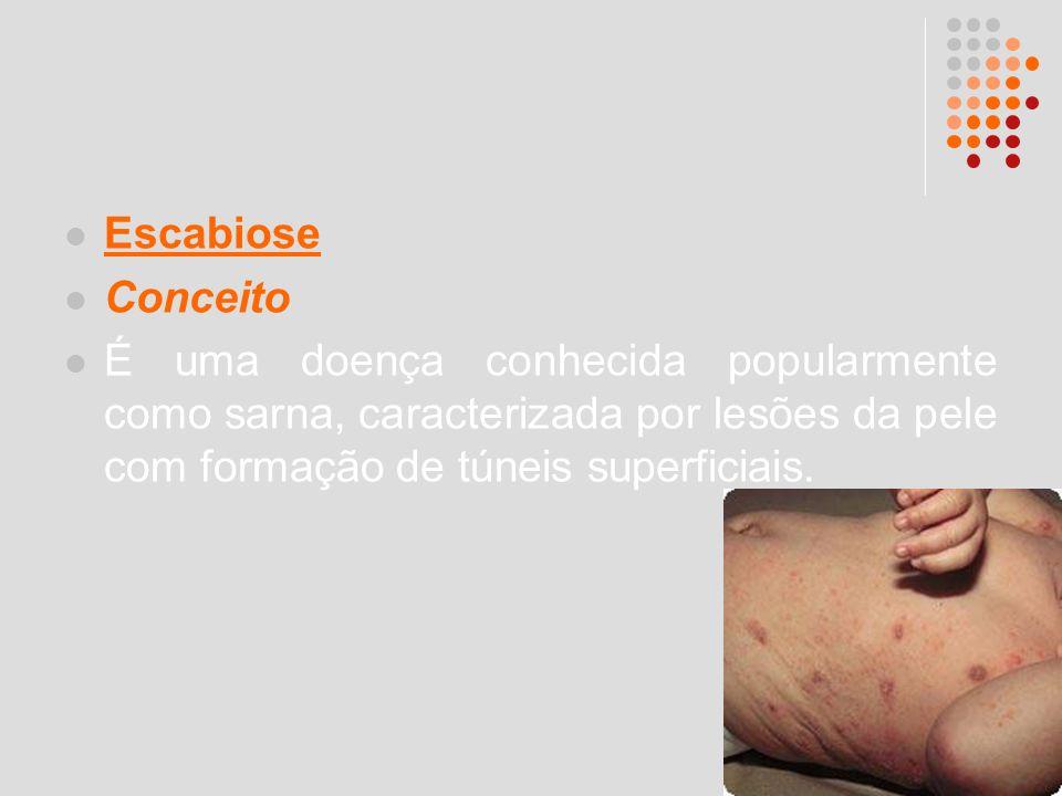 Escabiose Conceito É uma doença conhecida popularmente como sarna, caracterizada por lesões da pele com formação de túneis superficiais.