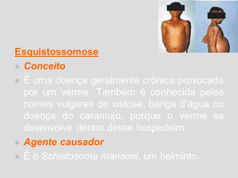 Esquistossomose Conceito É uma doença geralmente crônica provocada por um verme. Também é conhecida pelos nomes vulgares de xistose, bariga dágua ou d