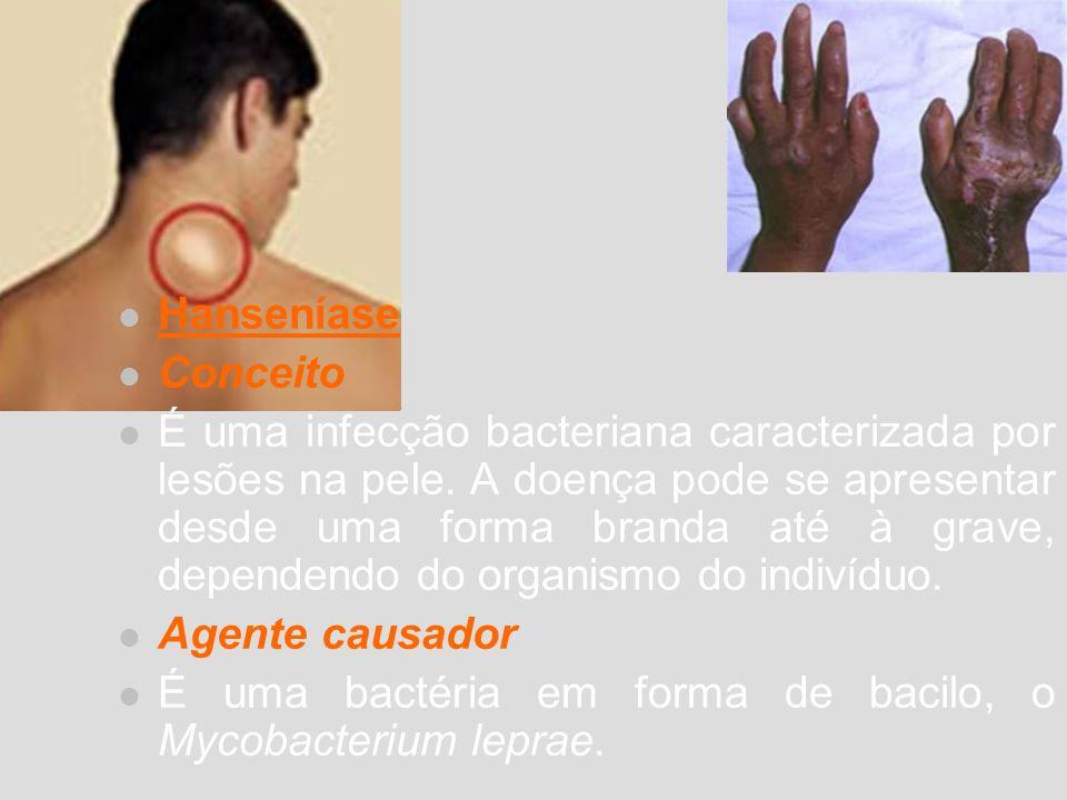 Hanseníase Conceito É uma infecção bacteriana caracterizada por lesões na pele. A doença pode se apresentar desde uma forma branda até à grave, depend