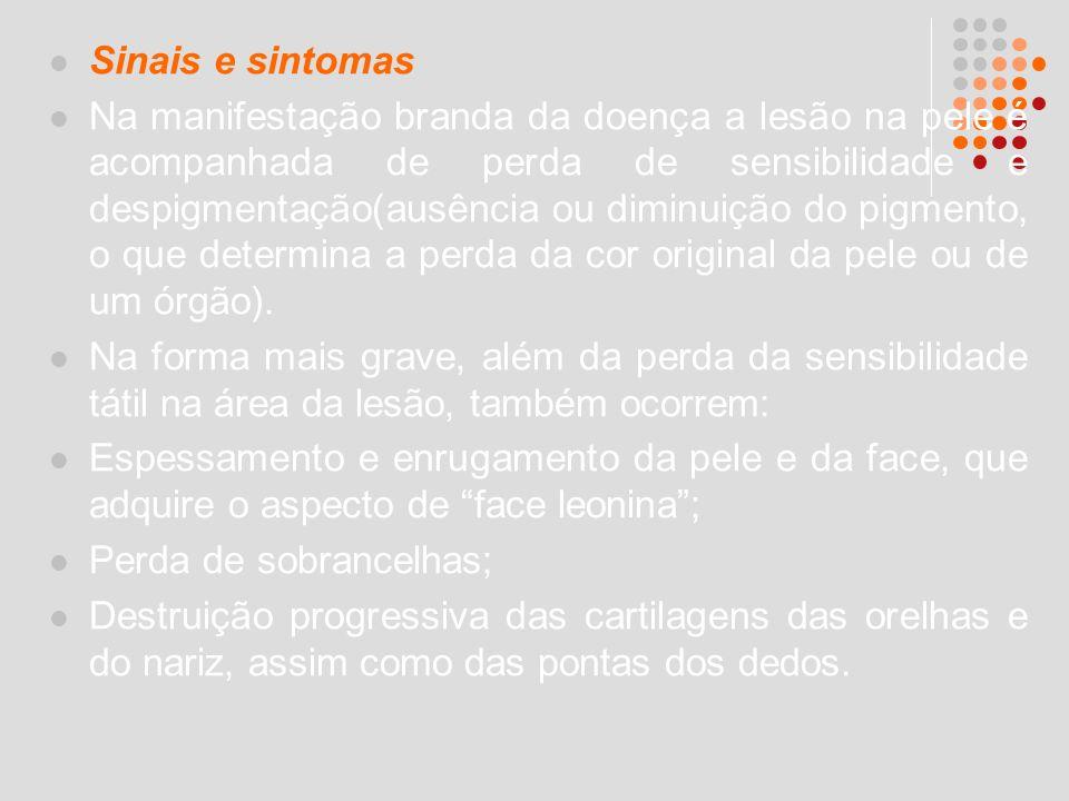 Sinais e sintomas Na manifestação branda da doença a lesão na pele é acompanhada de perda de sensibilidade e despigmentação(ausência ou diminuição do