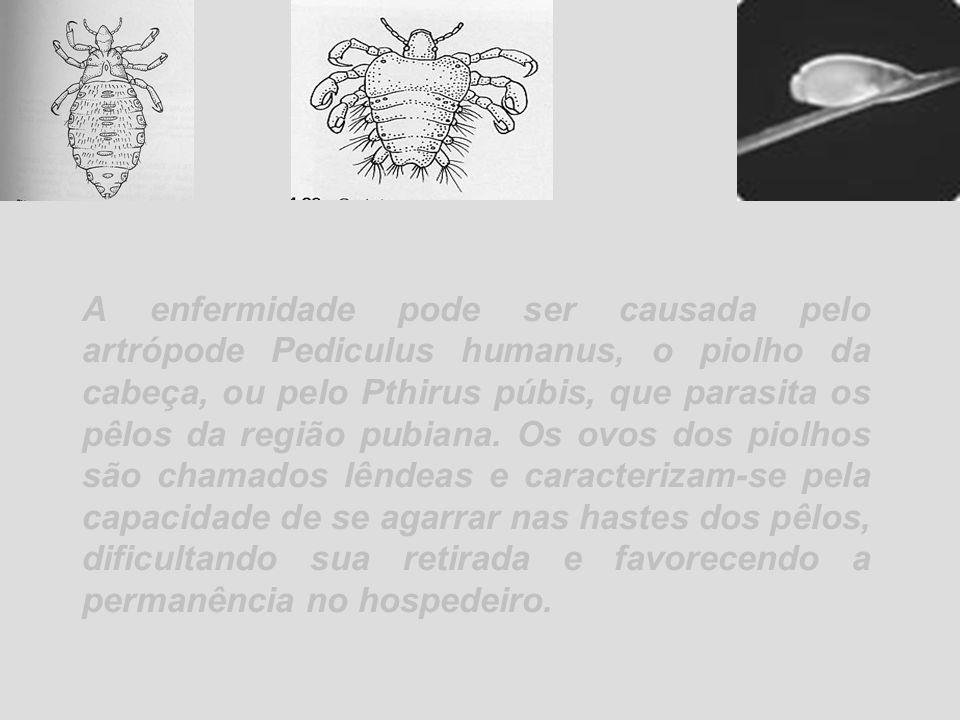A enfermidade pode ser causada pelo artrópode Pediculus humanus, o piolho da cabeça, ou pelo Pthirus púbis, que parasita os pêlos da região pubiana. O