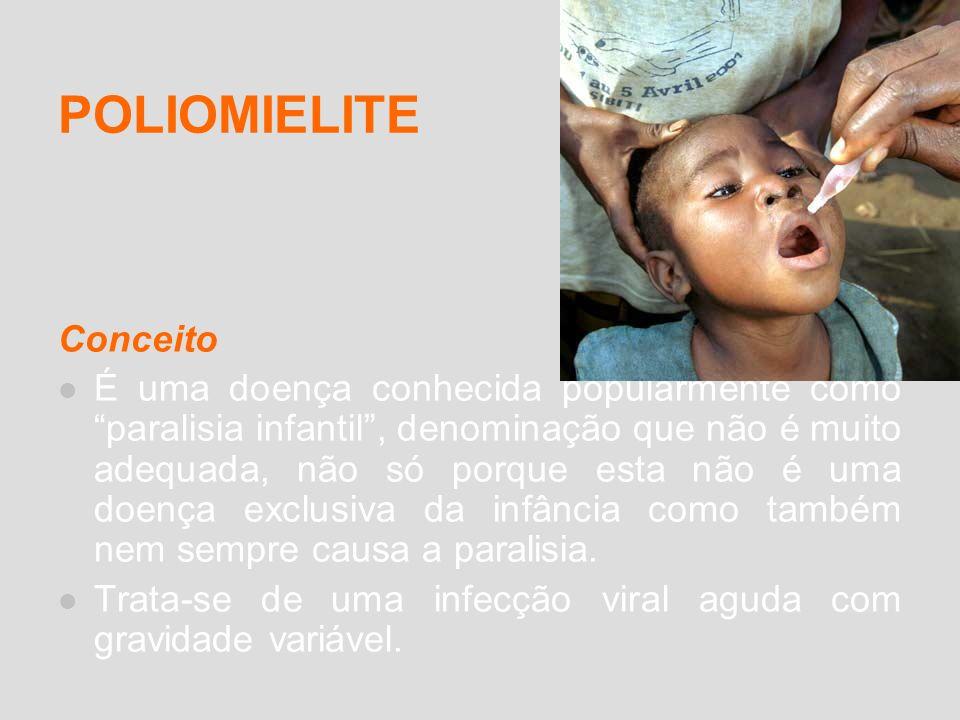 POLIOMIELITE Conceito É uma doença conhecida popularmente como paralisia infantil, denominação que não é muito adequada, não só porque esta não é uma