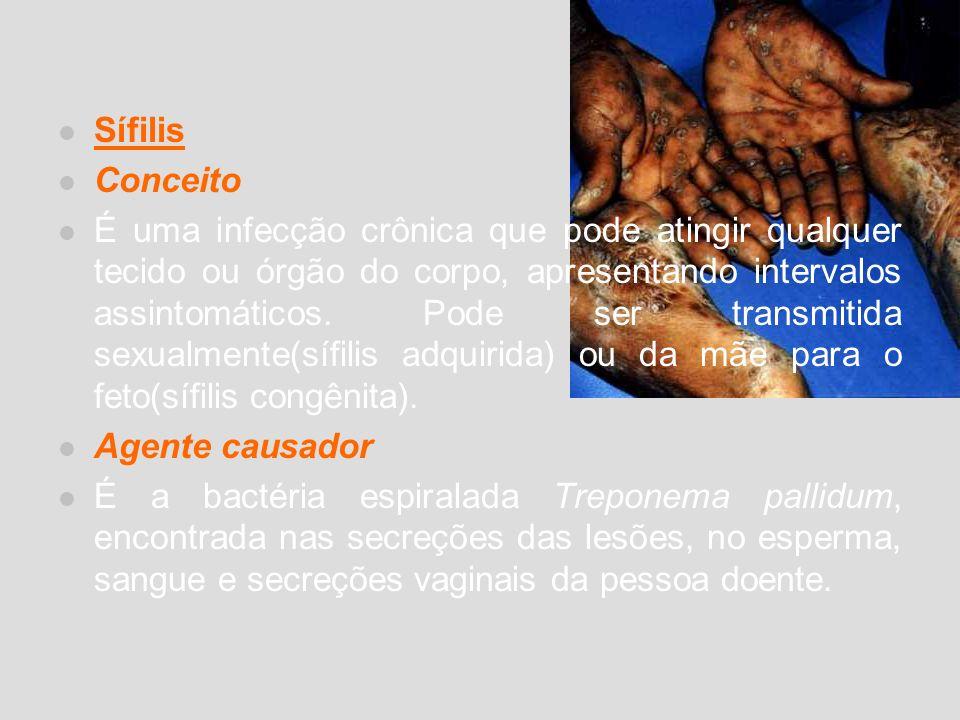 Sífilis Conceito É uma infecção crônica que pode atingir qualquer tecido ou órgão do corpo, apresentando intervalos assintomáticos. Pode ser transmiti