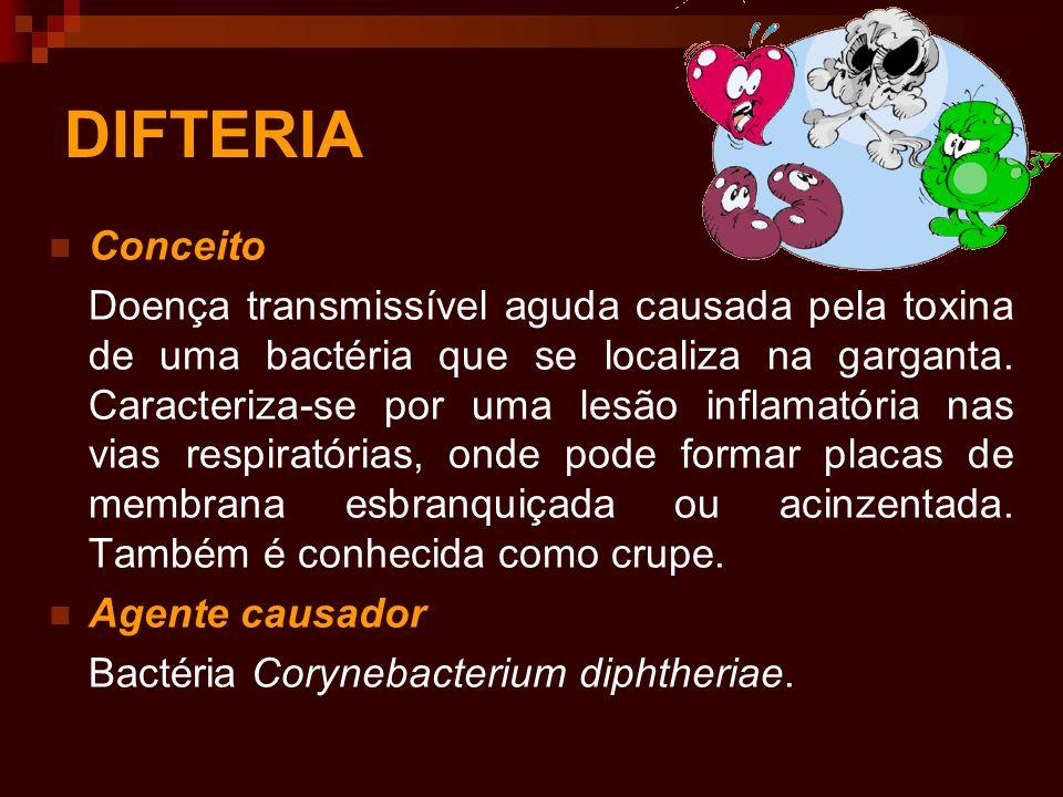 DIFTERIA Conceito Doença transmissível aguda causada pela toxina de uma bactéria que se localiza na garganta. Caracteriza-se por uma lesão inflamatóri