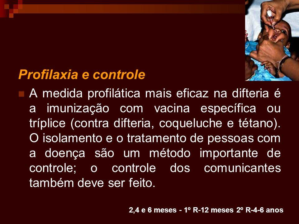 Profilaxia e controle A medida profilática mais eficaz na difteria é a imunização com vacina específica ou tríplice (contra difteria, coqueluche e tét