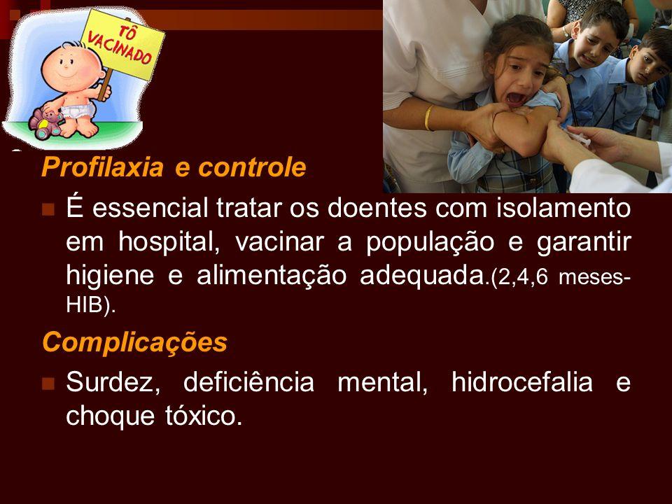 Profilaxia e controle É essencial tratar os doentes com isolamento em hospital, vacinar a população e garantir higiene e alimentação adequada.(2,4,6 m