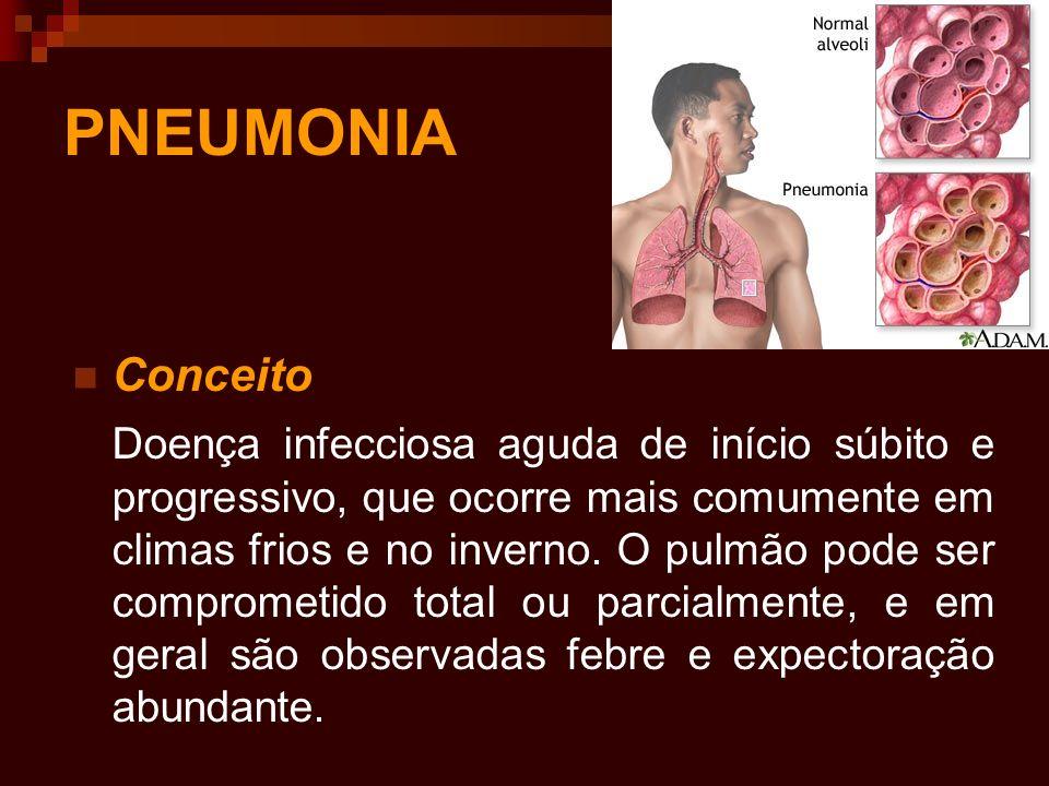 PNEUMONIA Conceito Doença infecciosa aguda de início súbito e progressivo, que ocorre mais comumente em climas frios e no inverno. O pulmão pode ser c