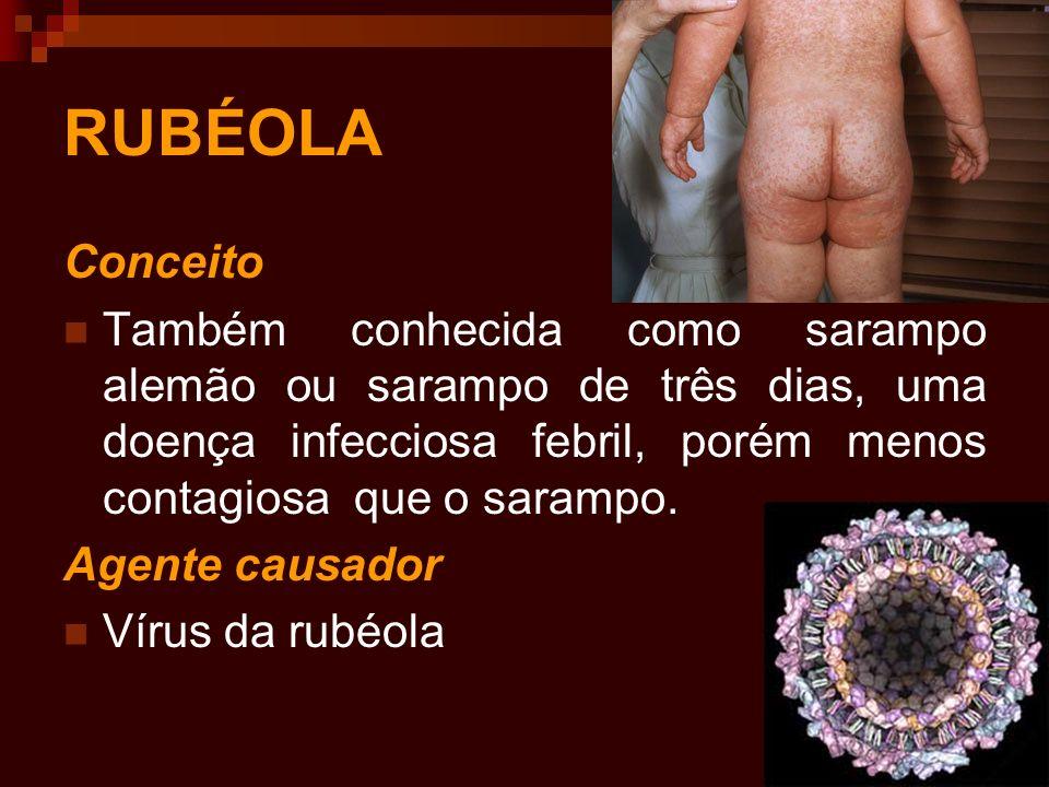 RUBÉOLA Conceito Também conhecida como sarampo alemão ou sarampo de três dias, uma doença infecciosa febril, porém menos contagiosa que o sarampo. Age