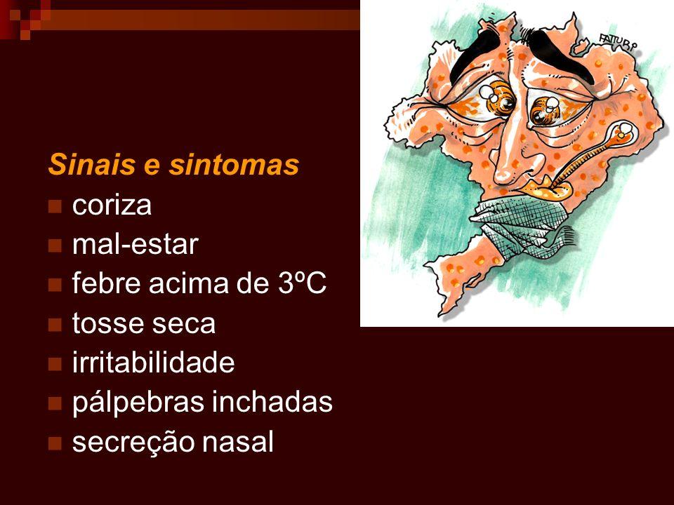 Sinais e sintomas coriza mal-estar febre acima de 3ºC tosse seca irritabilidade pálpebras inchadas secreção nasal