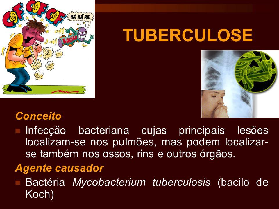 TUBERCULOSE Conceito Infecção bacteriana cujas principais lesões localizam-se nos pulmões, mas podem localizar- se também nos ossos, rins e outros órg