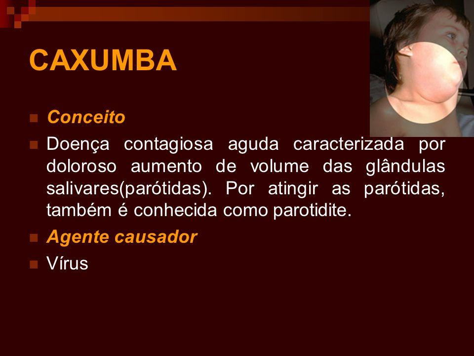 CAXUMBA Conceito Doença contagiosa aguda caracterizada por doloroso aumento de volume das glândulas salivares(parótidas). Por atingir as parótidas, ta