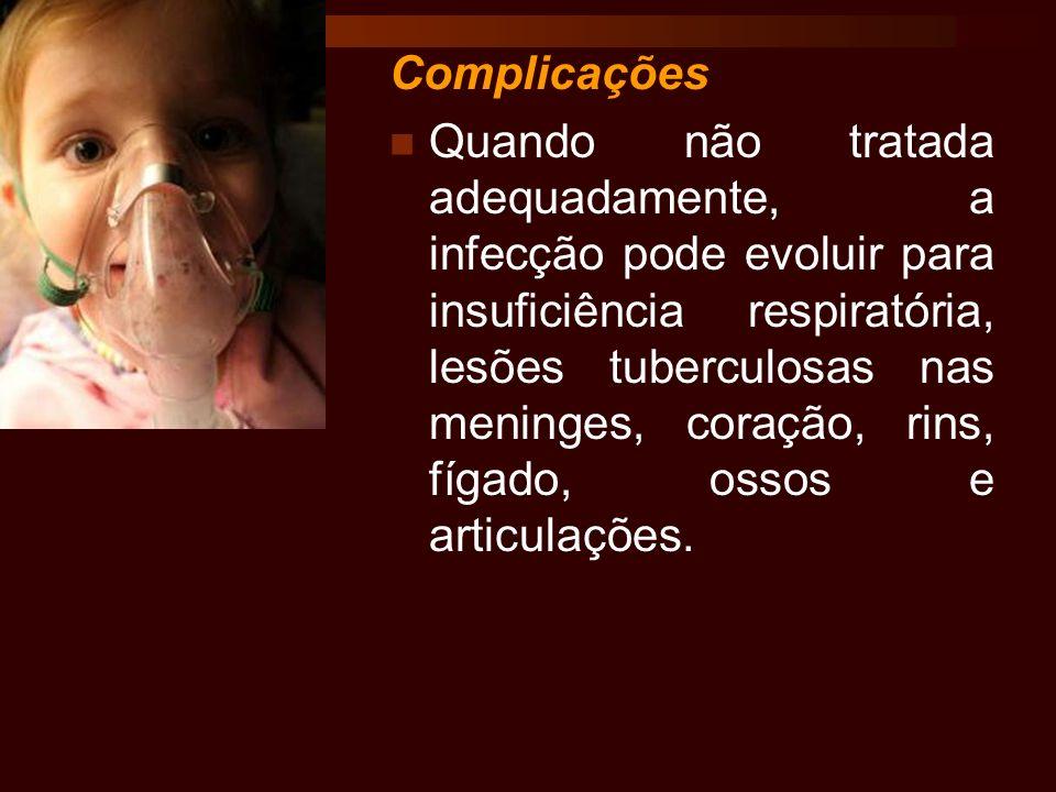 Complicações Quando não tratada adequadamente, a infecção pode evoluir para insuficiência respiratória, lesões tuberculosas nas meninges, coração, rin