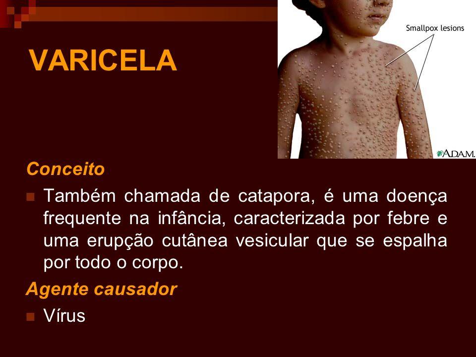 VARICELA Conceito Também chamada de catapora, é uma doença frequente na infância, caracterizada por febre e uma erupção cutânea vesicular que se espal
