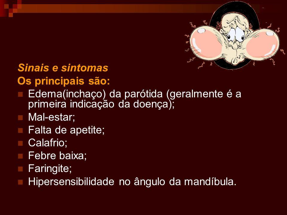 Sinais e sintomas Os principais são: Edema(inchaço) da parótida (geralmente é a primeira indicação da doença); Mal-estar; Falta de apetite; Calafrio;