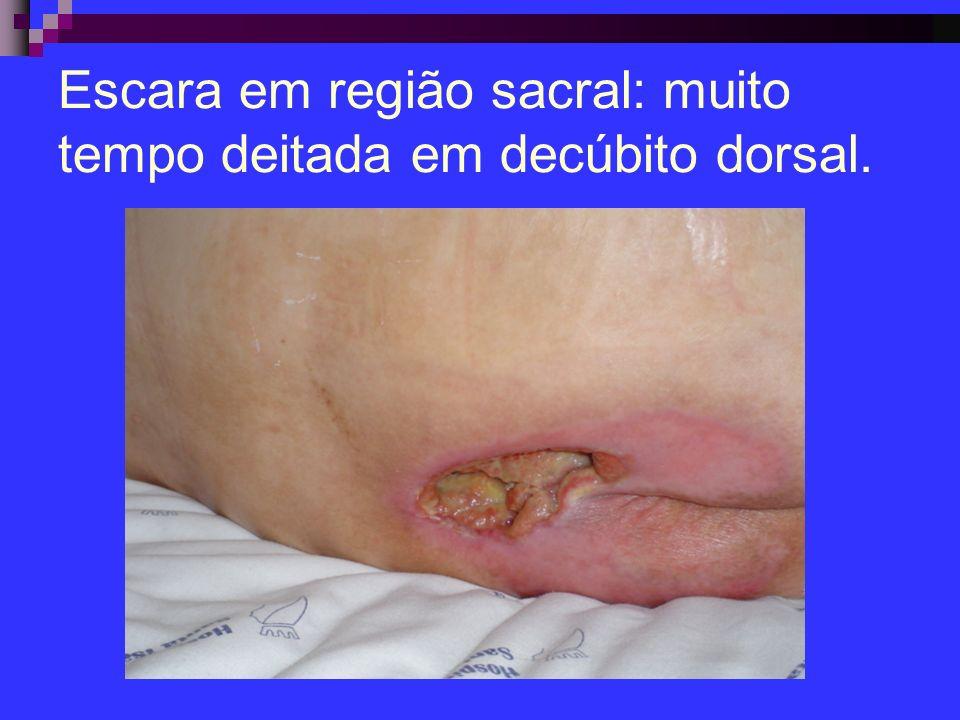 Escara em região sacral: muito tempo deitada em decúbito dorsal.