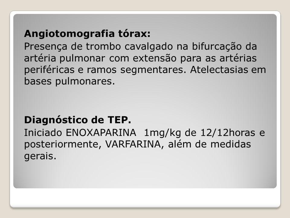 Angiotomografia tórax: Presença de trombo cavalgado na bifurcação da artéria pulmonar com extensão para as artérias periféricas e ramos segmentares. A