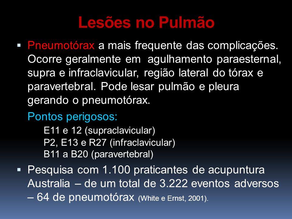 Lesões no Pulmão Pneumotórax a mais frequente das complicações. Ocorre geralmente em agulhamento paraesternal, supra e infraclavicular, região lateral